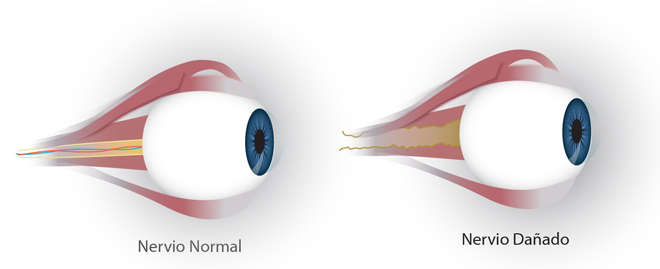 neuritis-optica